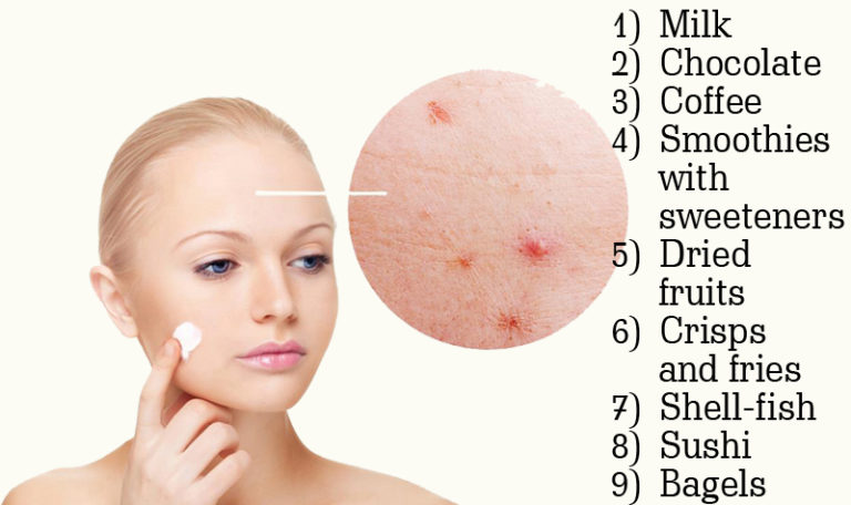 foods that can cause acne