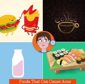 Types of Foods that Can Cause Acne